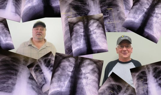 Living With Black Lung: Coal Miners Caught In A Surging Epidemic